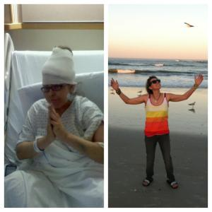 In the hospital after my second brain surgery in (June 2012) vs. (January 2013) living it up--visiting familyat the beach in St. Augustine, FL