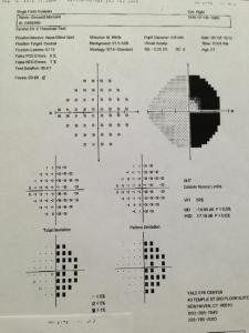 My visual field test which shows homonymous hemianopsia (black is where I can not see)
