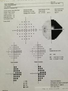 My visual field test of the other eye shows almost exactly the same amount of visual field