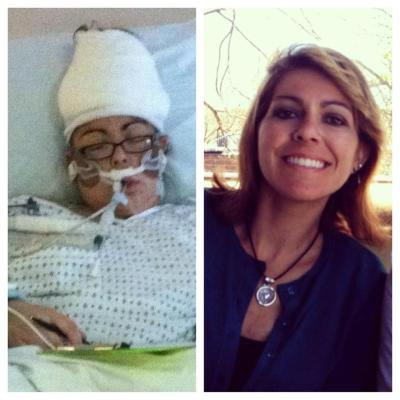 In the hospital post second brain surgery, June 2012 vs. May 3, 2013.  I don't even believe it sometimes.