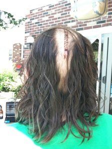 "For my second brain surgery they shaved down the middle of my head and sewed back with stitches.   This look, which I called the ""Reverse MO-hawk"" was a lot more noticeable than my staples."