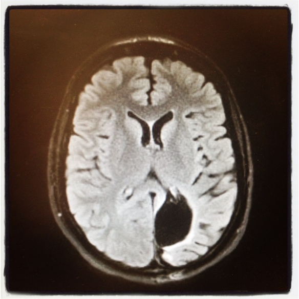 My brain scan, 3/13/14 at Yale-New Haven Hospital.  While I anticipated much of this news, what I did not expect was my MRI scan to look like this: HOLE-y MO-y!